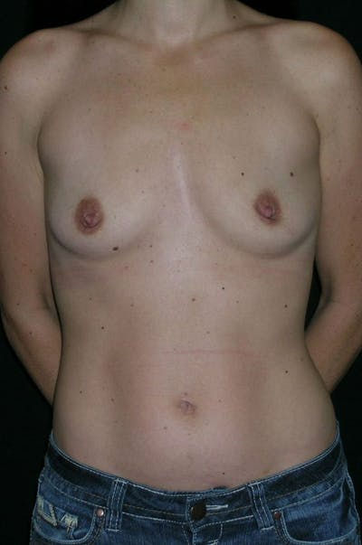 Breast Augmentation Gallery - Patient 23533327 - Image 1