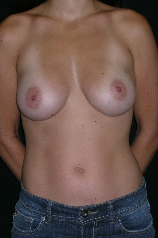Breast Augmentation Gallery - Patient 23533327 - Image 2