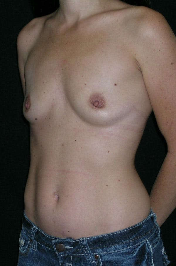 Breast Augmentation Gallery - Patient 23533327 - Image 3