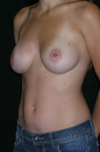 Breast Augmentation Gallery - Patient 23533327 - Image 4