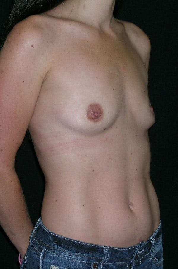 Breast Augmentation Gallery - Patient 23533327 - Image 5