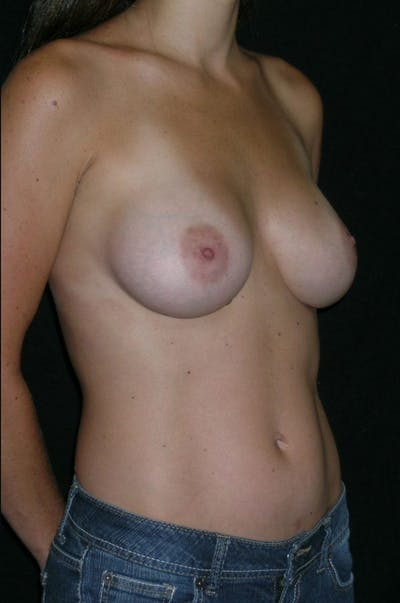 Breast Augmentation Gallery - Patient 23533327 - Image 6