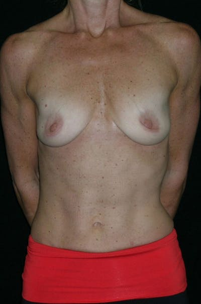 Breast Augmentation Gallery - Patient 23533335 - Image 1
