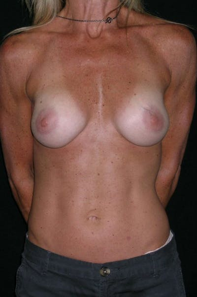 Breast Augmentation Gallery - Patient 23533335 - Image 2