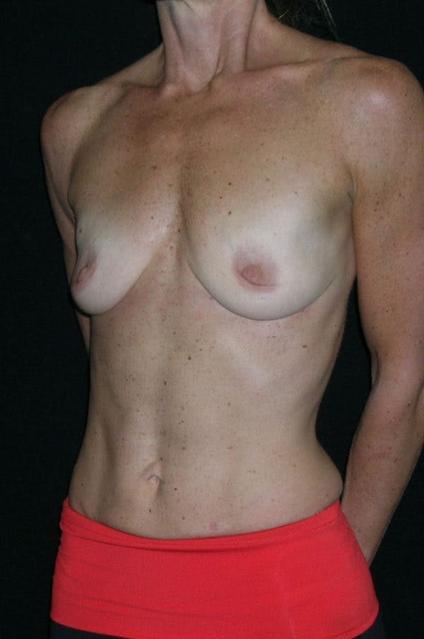 Breast Augmentation Gallery - Patient 23533335 - Image 3