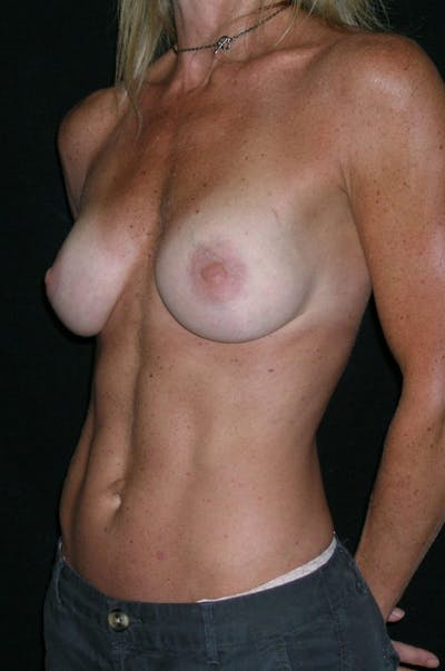Breast Augmentation Gallery - Patient 23533335 - Image 4