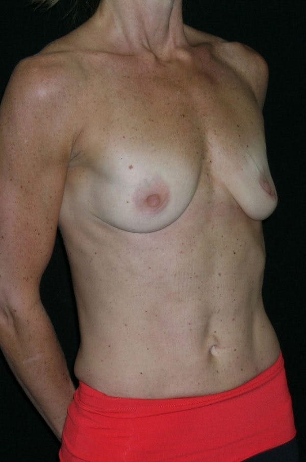 Breast Augmentation Gallery - Patient 23533335 - Image 5