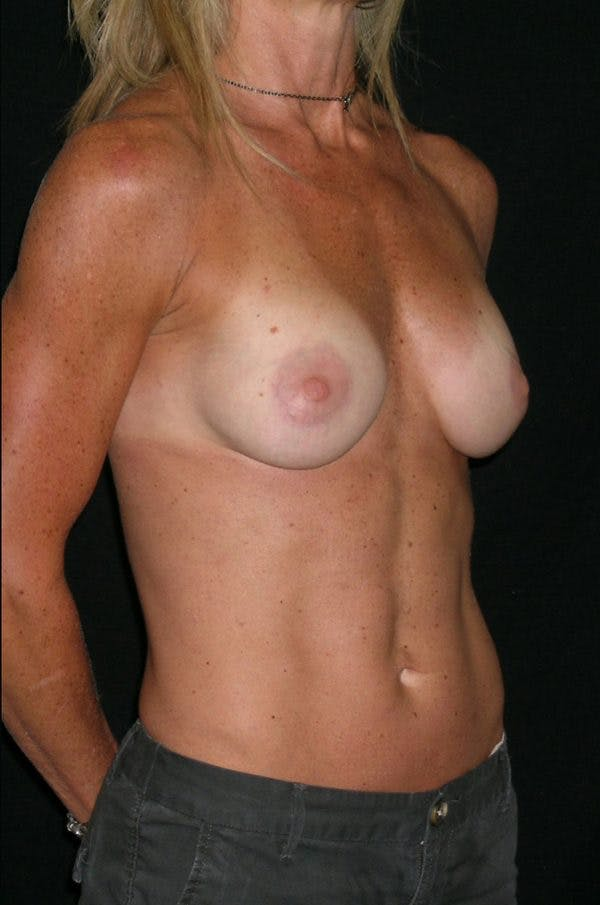 Breast Augmentation Gallery - Patient 23533335 - Image 6