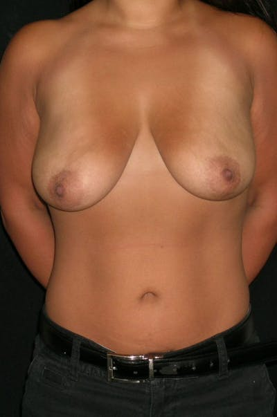 Breast Augmentation Gallery - Patient 23533345 - Image 1