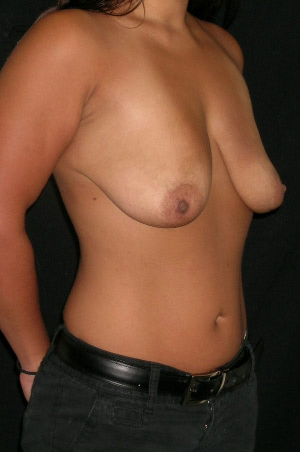 Breast Augmentation Gallery - Patient 23533345 - Image 3