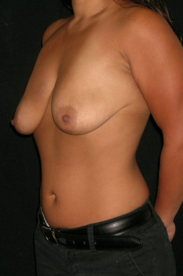 Breast Augmentation Gallery - Patient 23533345 - Image 5