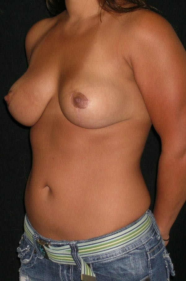 Breast Augmentation Gallery - Patient 23533345 - Image 6