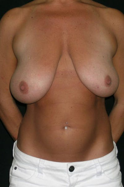 Breast Augmentation Gallery - Patient 23533372 - Image 1