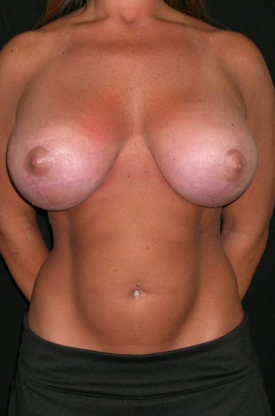 Breast Augmentation Gallery - Patient 23533372 - Image 2