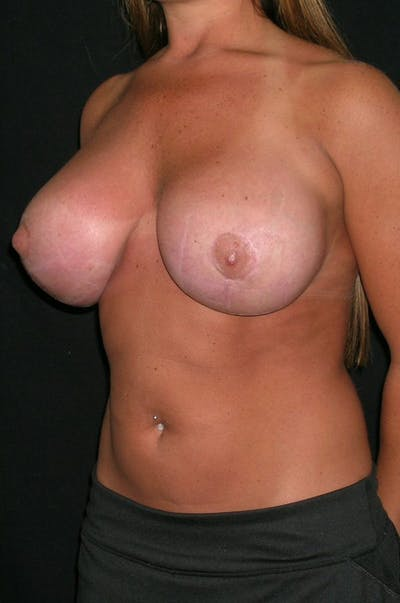 Breast Augmentation Gallery - Patient 23533372 - Image 4