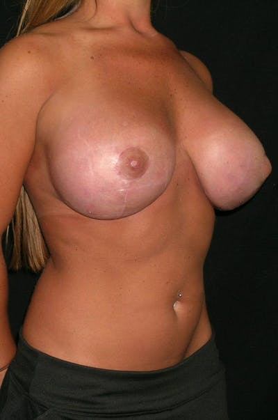 Breast Augmentation Gallery - Patient 23533372 - Image 6