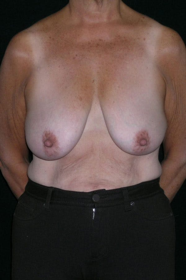 Breast Augmentation Gallery - Patient 23533378 - Image 1