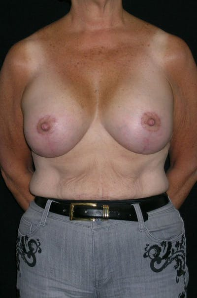 Breast Augmentation Gallery - Patient 23533378 - Image 2