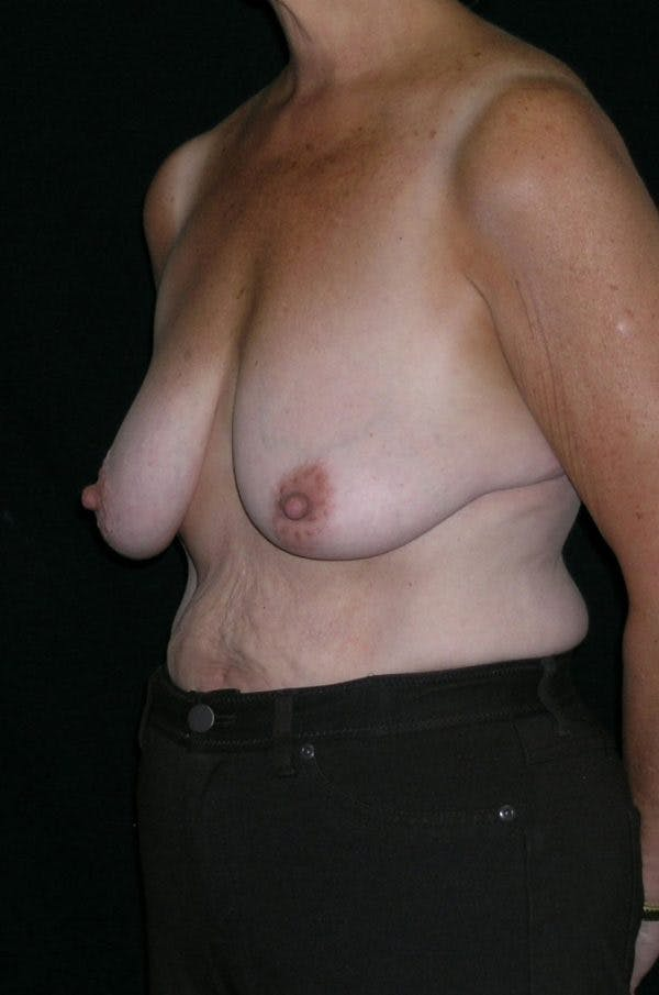 Breast Augmentation Gallery - Patient 23533378 - Image 3