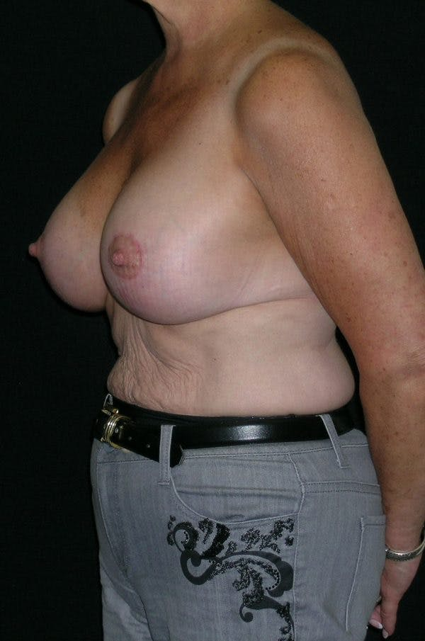 Breast Augmentation Gallery - Patient 23533378 - Image 4
