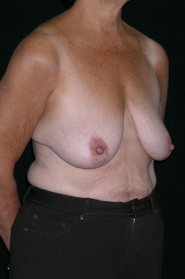 Breast Augmentation Gallery - Patient 23533378 - Image 5