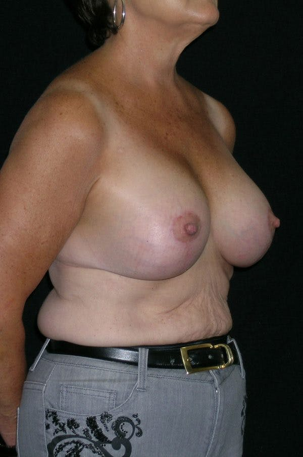 Breast Augmentation Gallery - Patient 23533378 - Image 6
