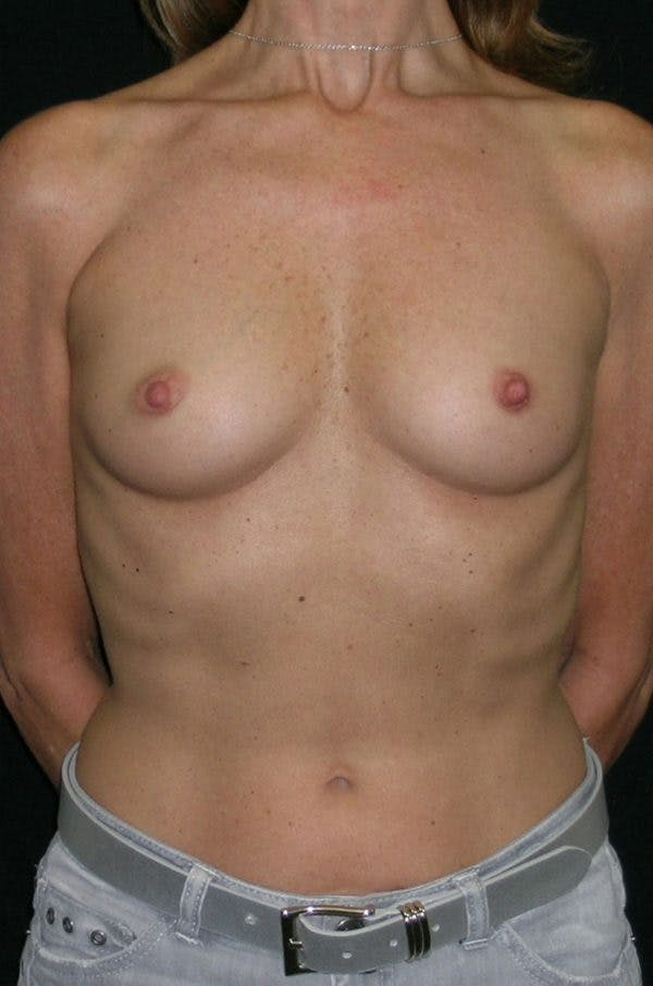 Breast Augmentation Gallery - Patient 23533381 - Image 1