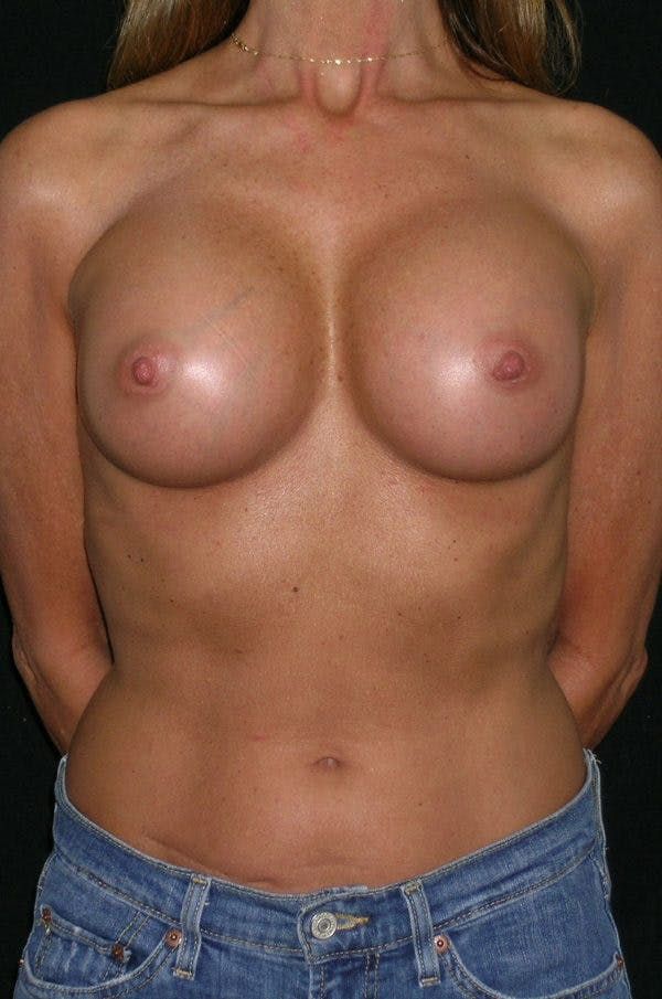 Breast Augmentation Gallery - Patient 23533381 - Image 2
