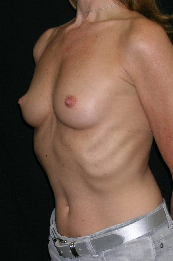 Breast Augmentation Gallery - Patient 23533381 - Image 3