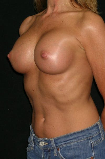 Breast Augmentation Gallery - Patient 23533381 - Image 4