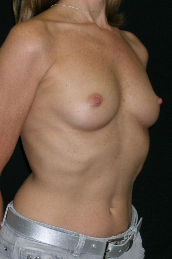 Breast Augmentation Gallery - Patient 23533381 - Image 5