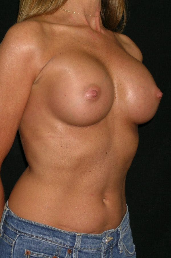 Breast Augmentation Gallery - Patient 23533381 - Image 6