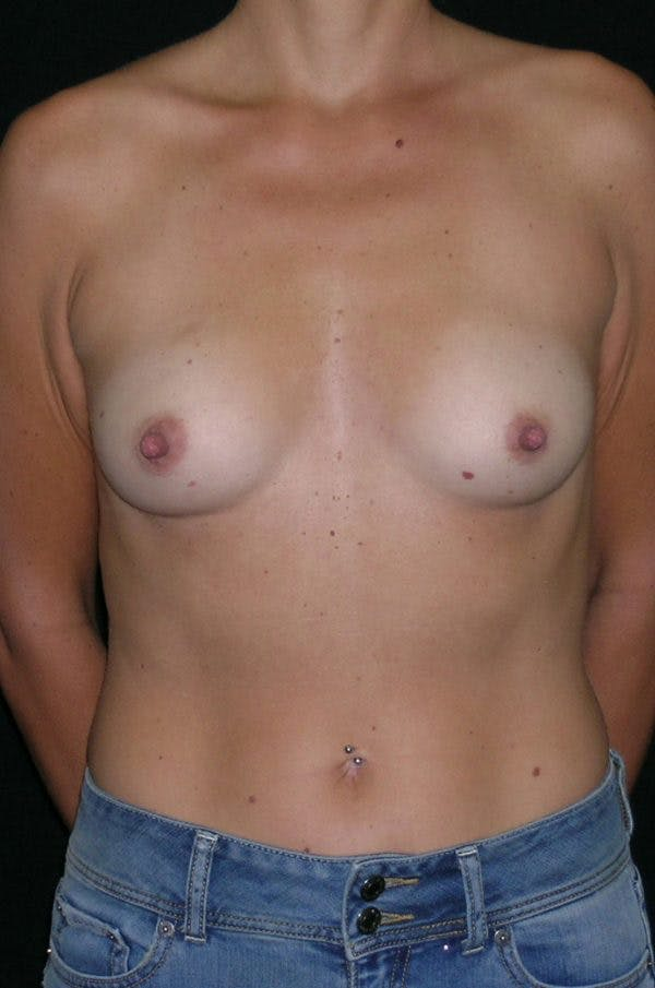 Breast Augmentation Gallery - Patient 23533395 - Image 1