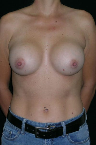 Breast Augmentation Gallery - Patient 23533395 - Image 2