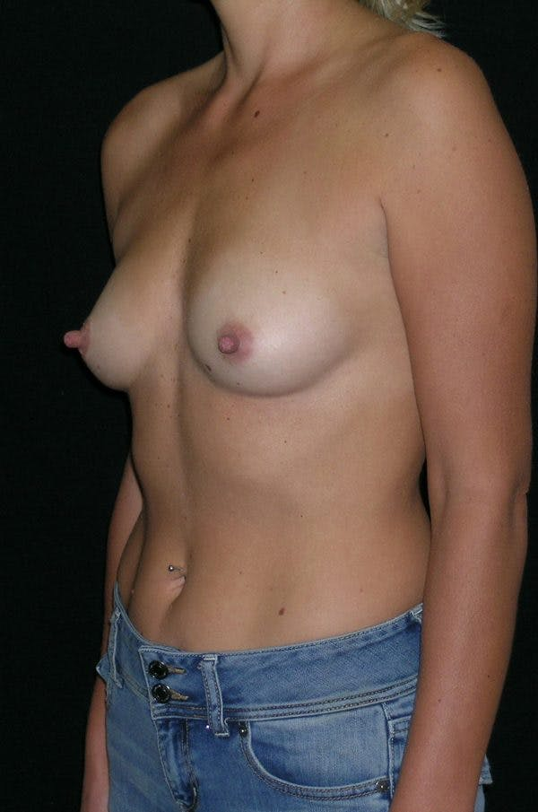 Breast Augmentation Gallery - Patient 23533395 - Image 3