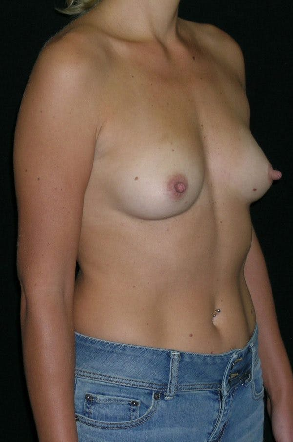 Breast Augmentation Gallery - Patient 23533395 - Image 5