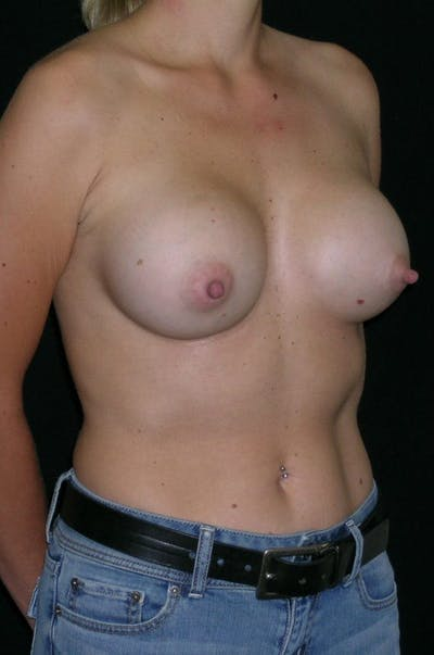 Breast Augmentation Gallery - Patient 23533395 - Image 6