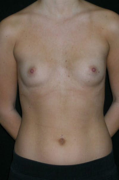Breast Augmentation Gallery - Patient 23533415 - Image 1