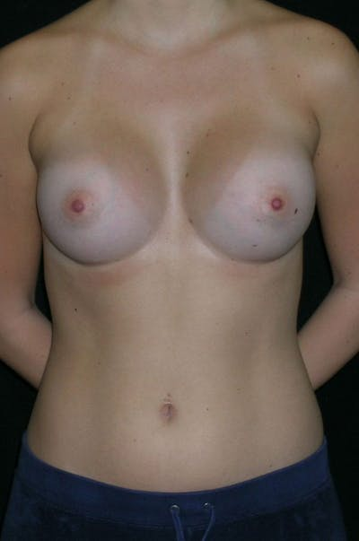 Breast Augmentation Gallery - Patient 23533415 - Image 2