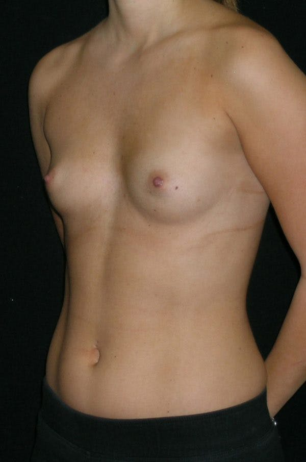 Breast Augmentation Gallery - Patient 23533415 - Image 3
