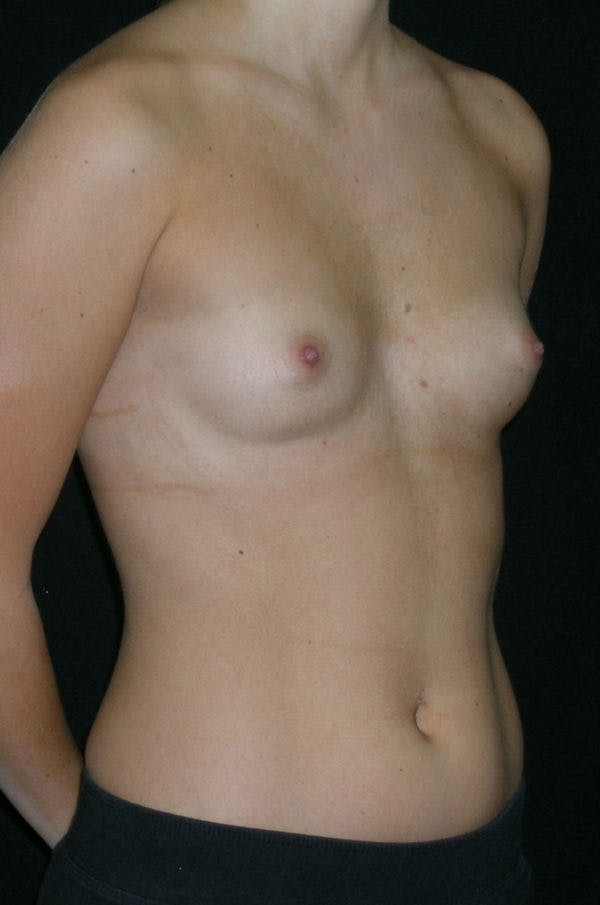 Breast Augmentation Gallery - Patient 23533415 - Image 5