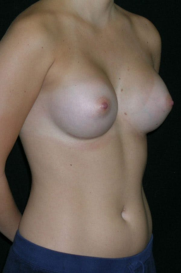 Breast Augmentation Gallery - Patient 23533415 - Image 6