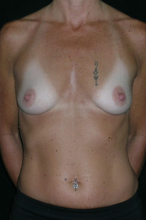 Breast Augmentation Gallery - Patient 23533550 - Image 1