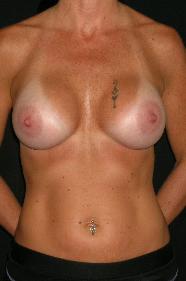 Breast Augmentation Gallery - Patient 23533550 - Image 2