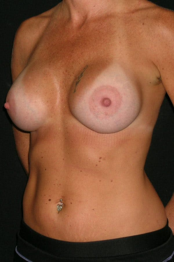 Breast Augmentation Gallery - Patient 23533550 - Image 4