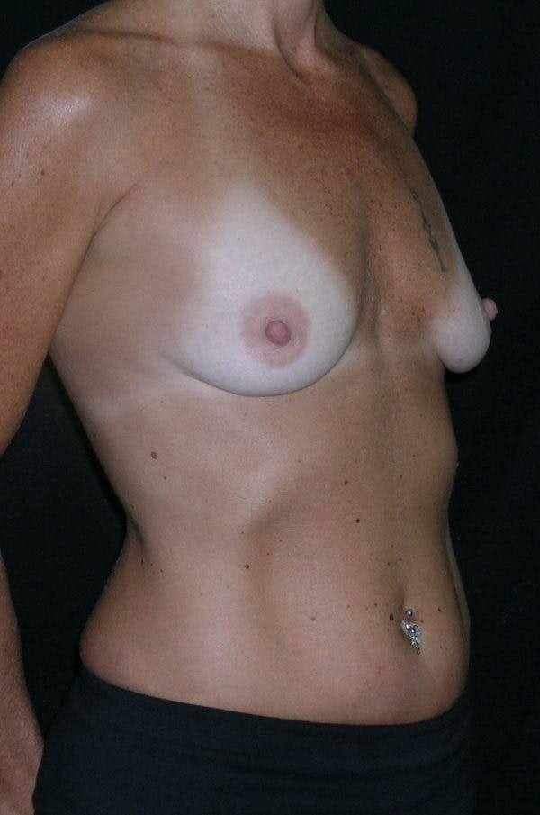 Breast Augmentation Gallery - Patient 23533550 - Image 5