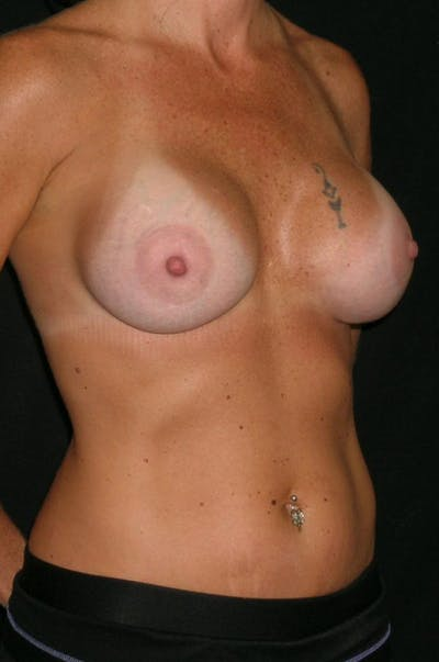 Breast Augmentation Gallery - Patient 23533550 - Image 6