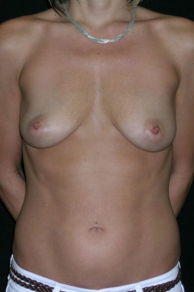 Breast Augmentation Gallery - Patient 23533551 - Image 1