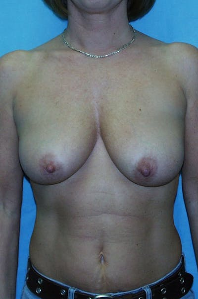 Mastopexy Gallery - Patient 23533717 - Image 1