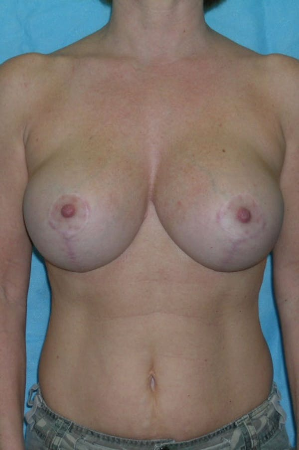 Mastopexy Gallery - Patient 23533717 - Image 2